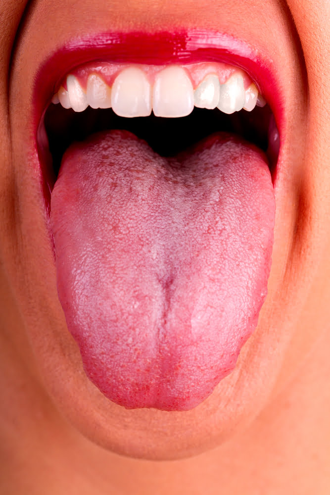 Weight Loss and Bad Breath (woman showing tongue)