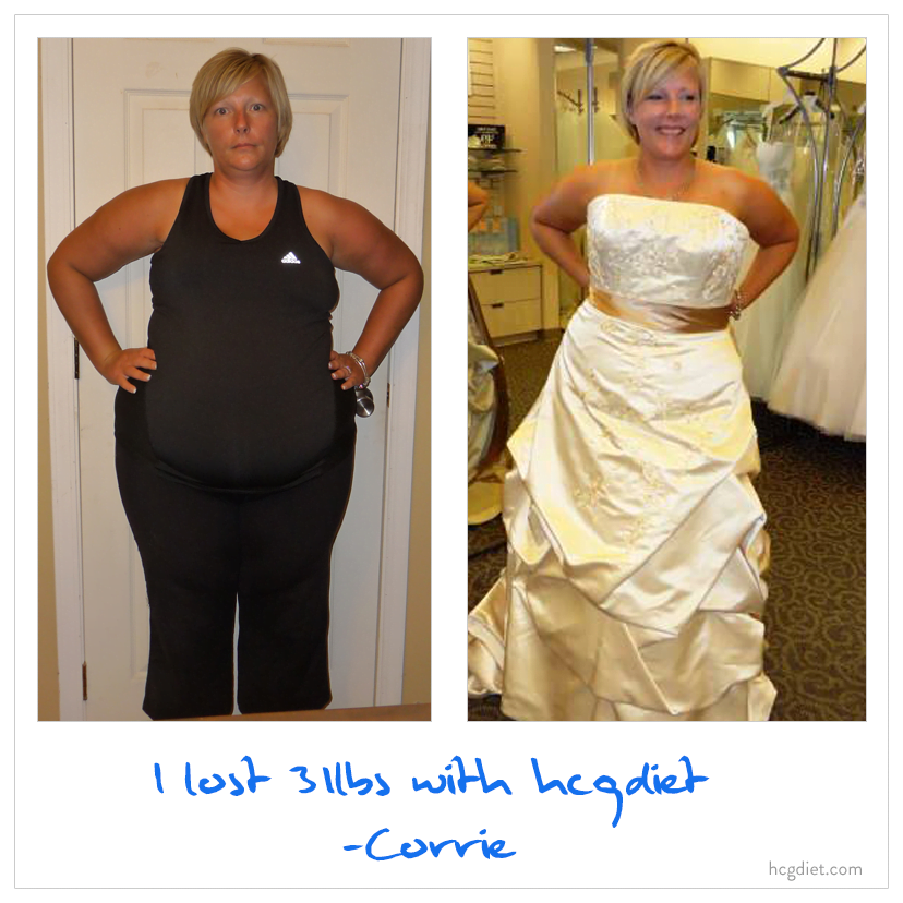 Corrie lost 31 pounds on the hcg diet