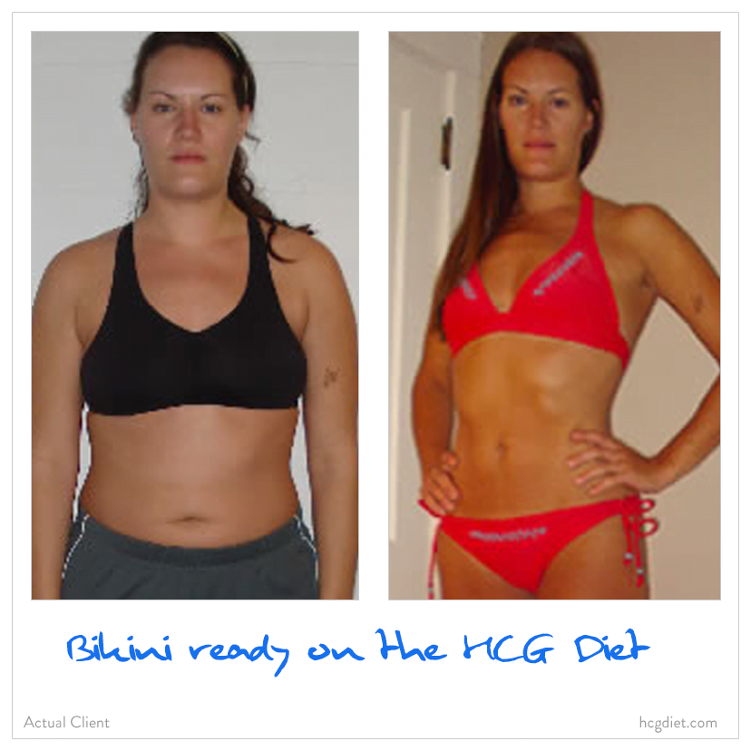 Hcg Diet Before And After Women