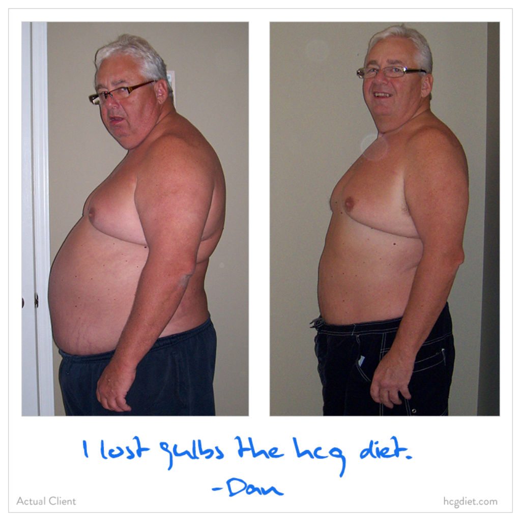 Dan lost 90 pounds on the hcg diet