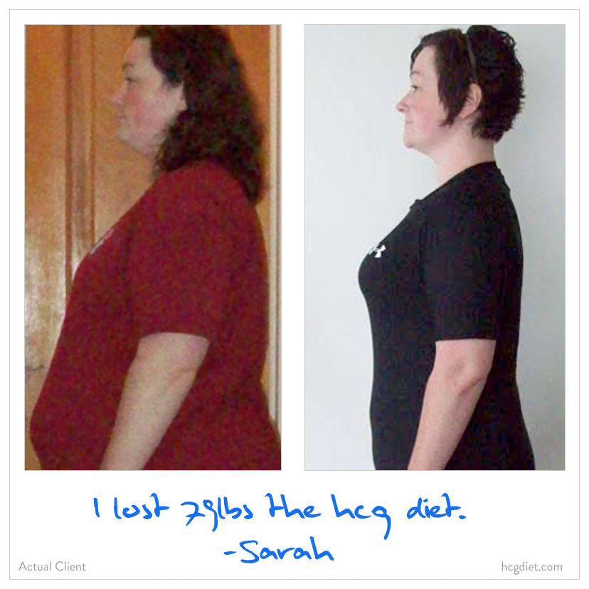 Sarah lost 79 pounds on the hcg diet